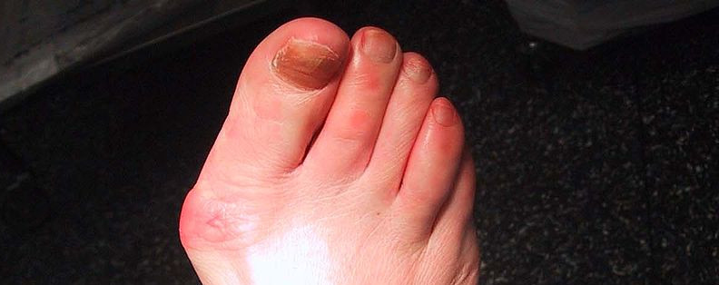 Do you hate your bunions?