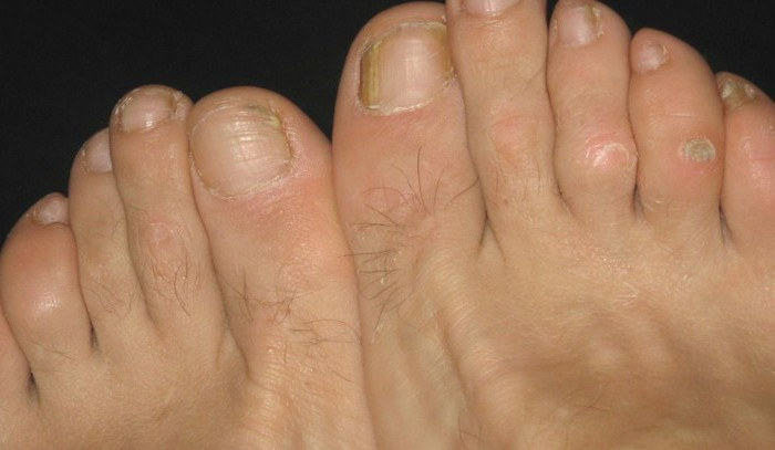 What to do about toe corns