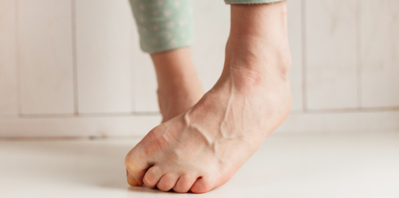 https://www.ugleefeet.com/wp-content/uploads/2018/12/11-Super-Simple-Ways-to-Disguise-Ugly-Feet.jpg