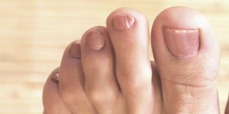 weird pinky toenail
