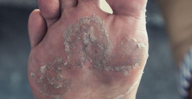 Foot peel vs DIY foot masks